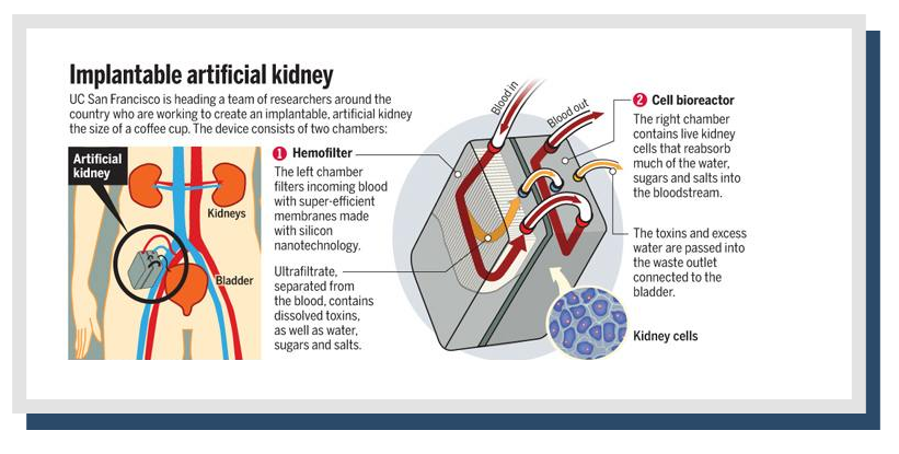 Kidne care center kidney hospital in karnal kidney specialist doctor artificial kidney ccuart Image collections