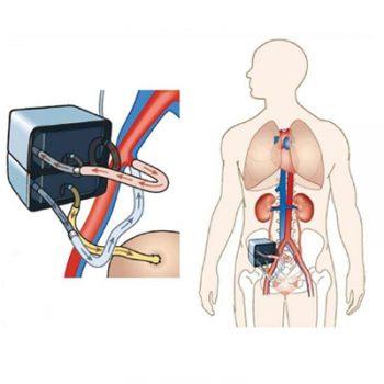 art-kidney